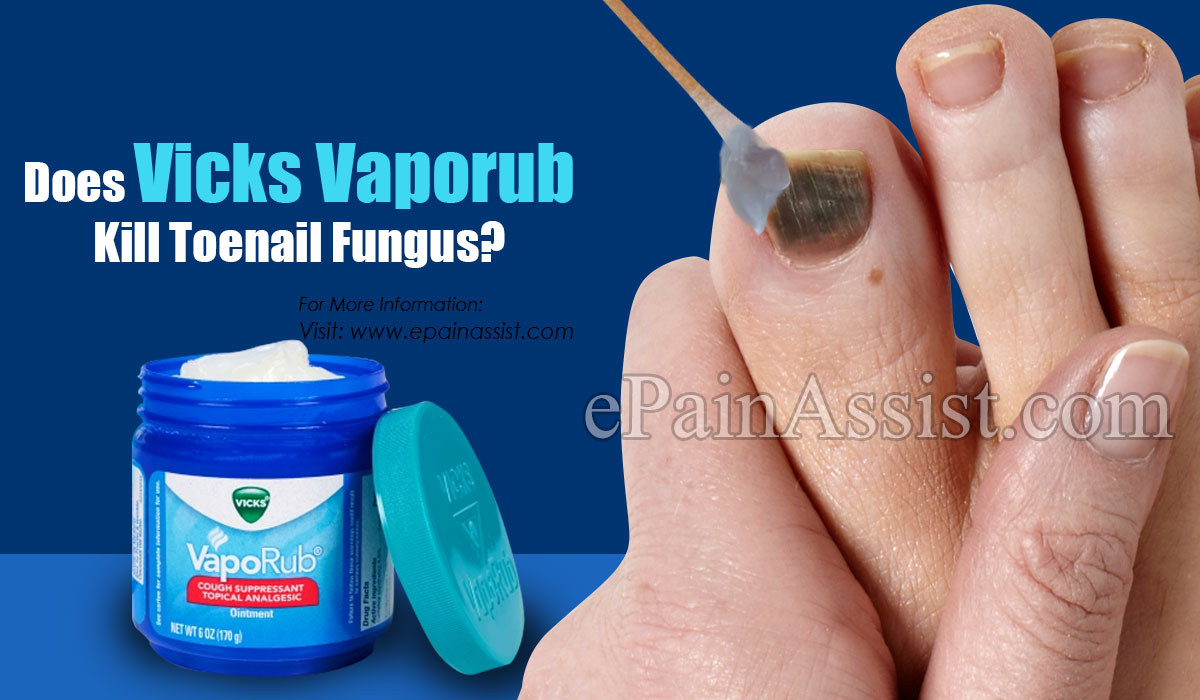 Does Vicks Vaporub Kill Toenail Fungus?
