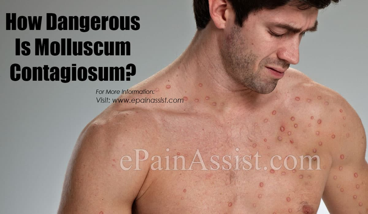 How Dangerous Is Molluscum Contagiosum?