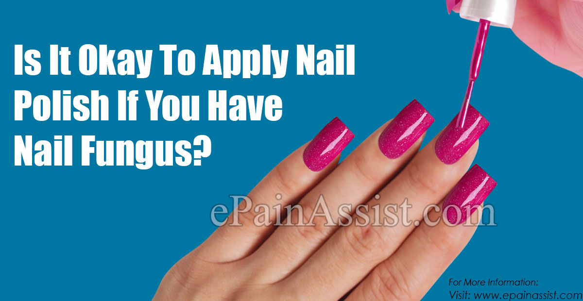 Is It Okay To Apply Nail Polish If You Have Nail Fungus?