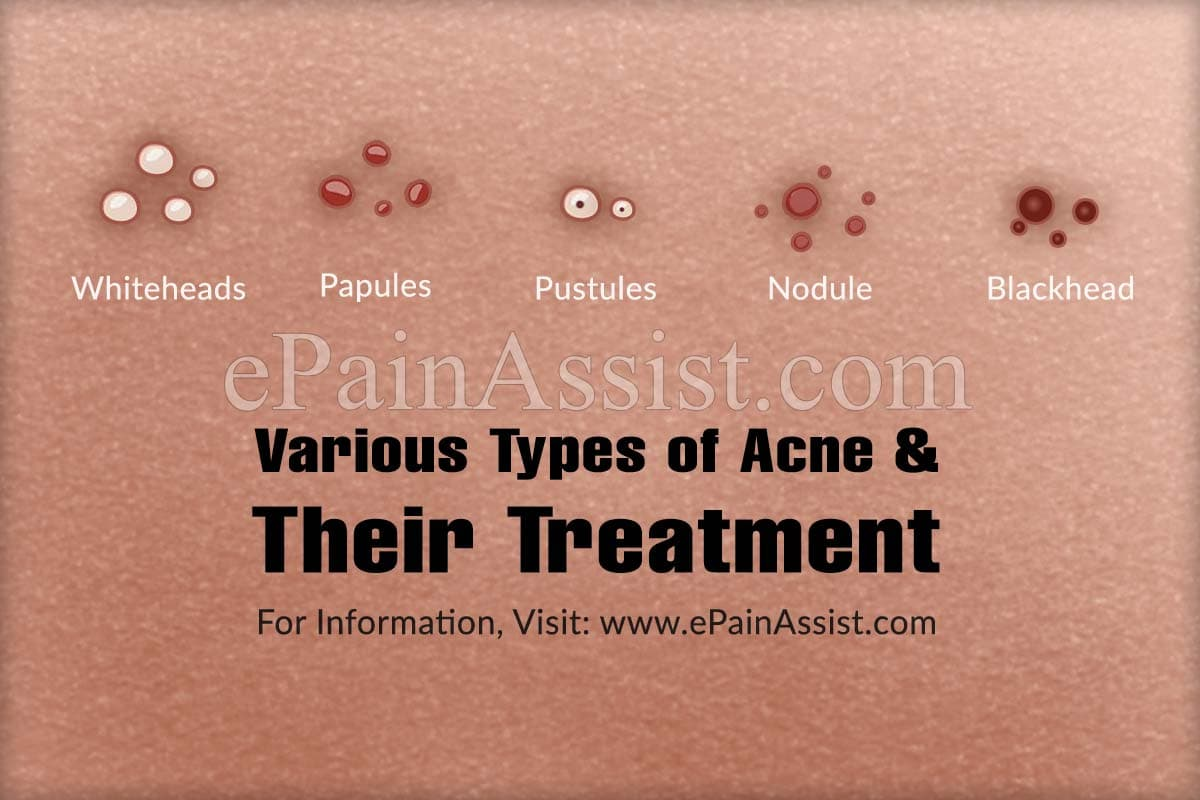 Various Types of Acne and their Treatment