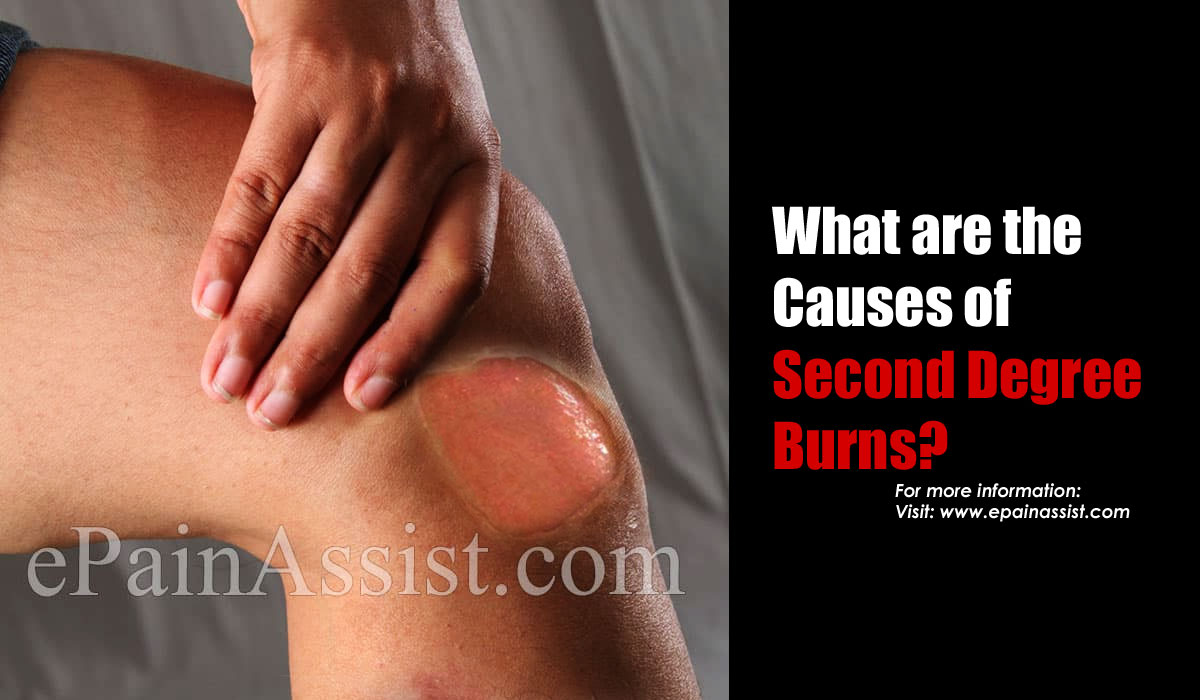 What are the Causes of Second Degree Burns?