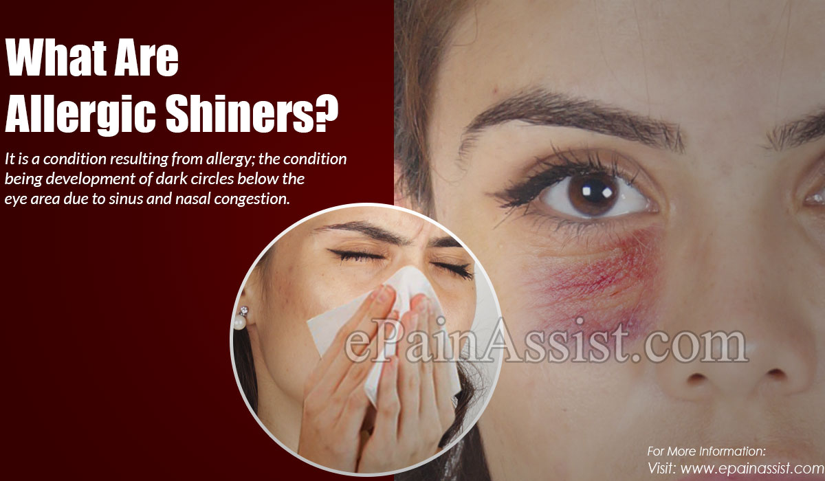 What Are Allergic Shiners?