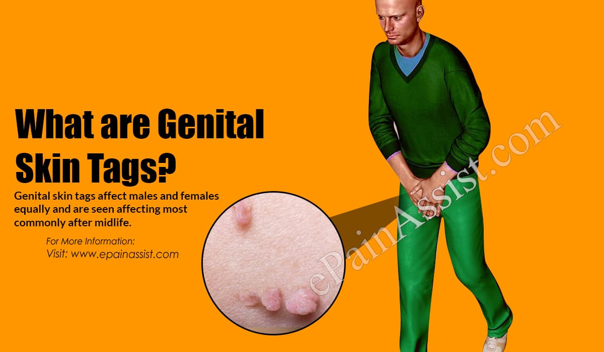 What are Genital Skin Tags?