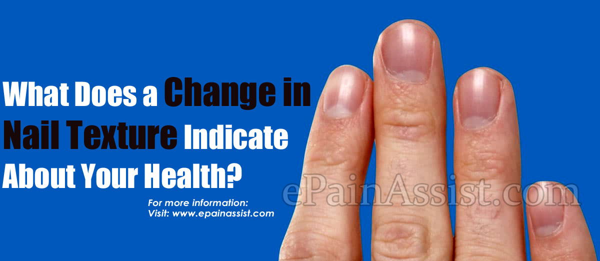 What Does a Change in Nail Texture Indicate About Your Health?