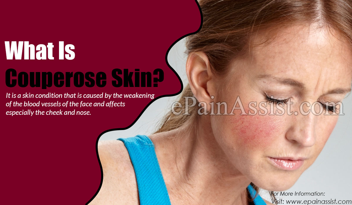 What Is Couperose Skin?