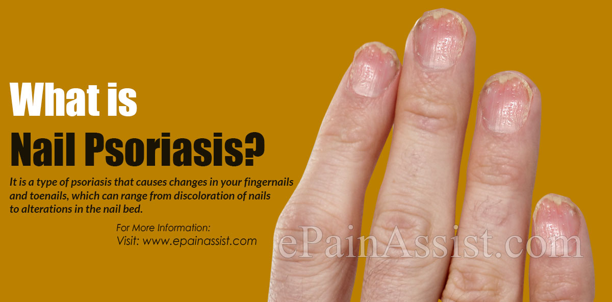 What is Nail Psoriasis?