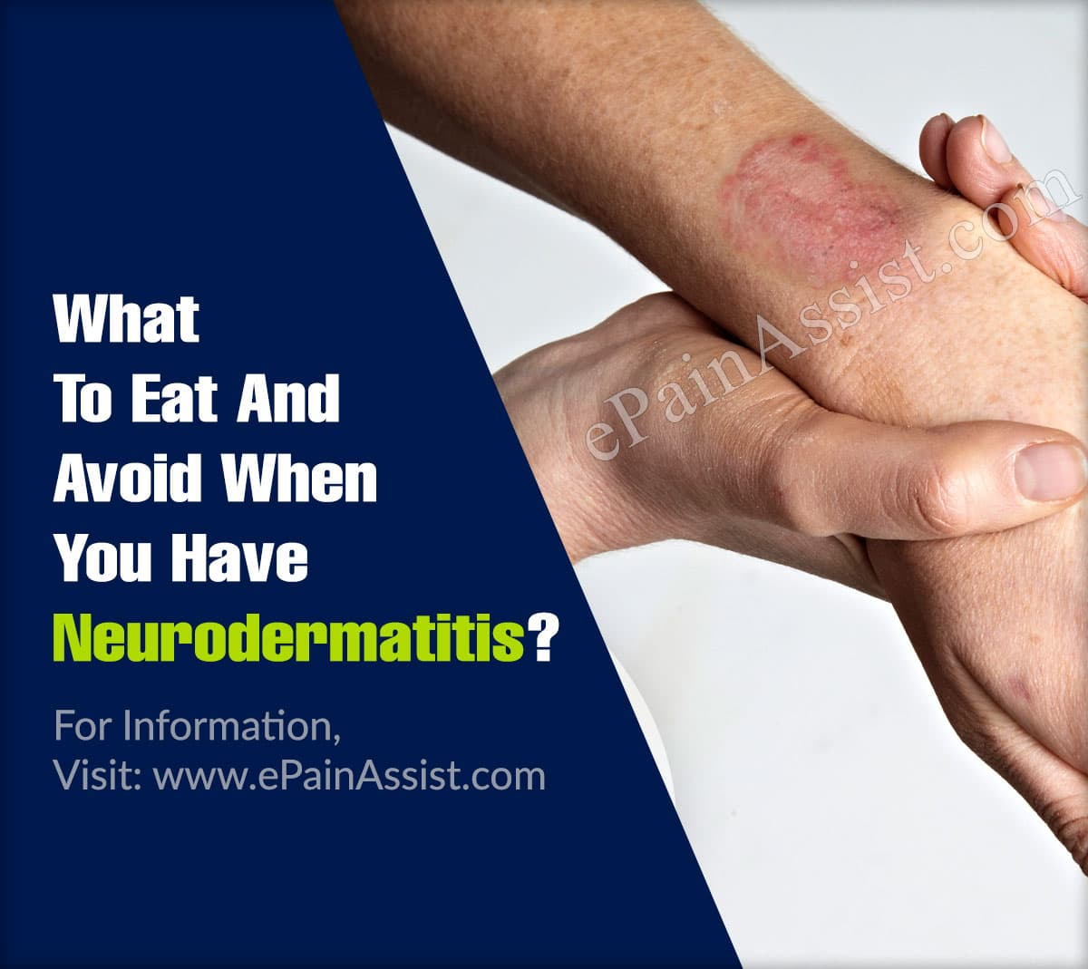 What To Eat And Avoid When You Have Neurodermatitis?