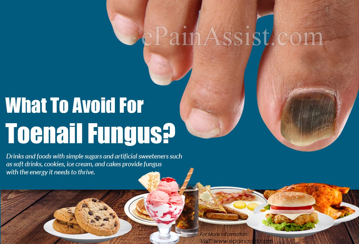 What To Avoid For Toenail Fungus?