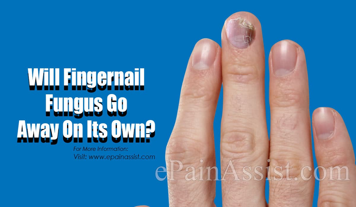 Will Fingernail Fungus Go Away On Its Own?