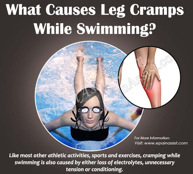 What Causes Leg Cramps While Swimming?
