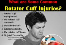 Common Rotator Cuff Injuries & 5 Exercises to Prevent Rotator Cuff Injury