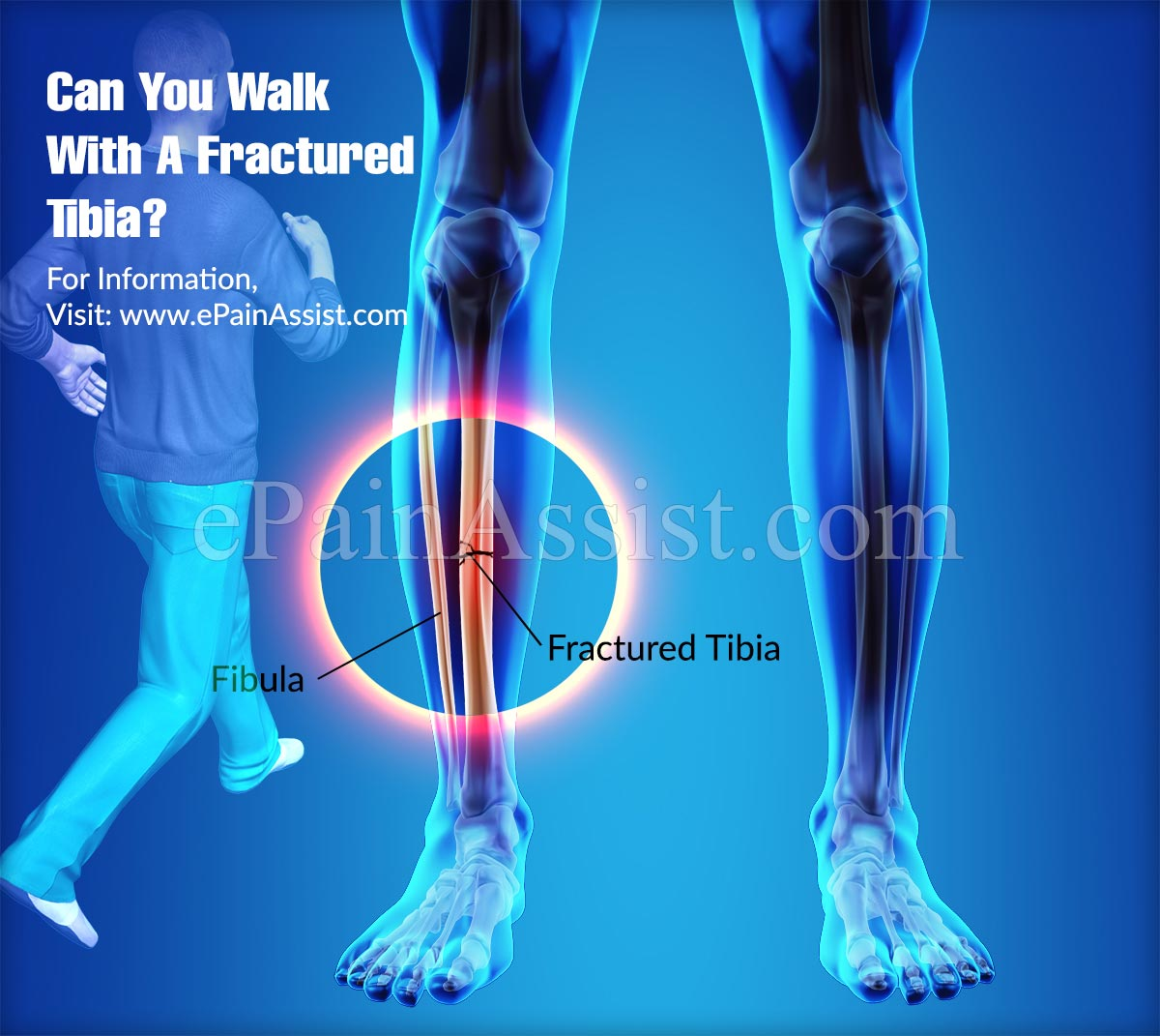 Can You Walk With A Fractured Tibia?