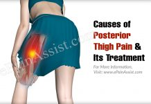 Causes of Posterior Thigh Pain & Its Treatment