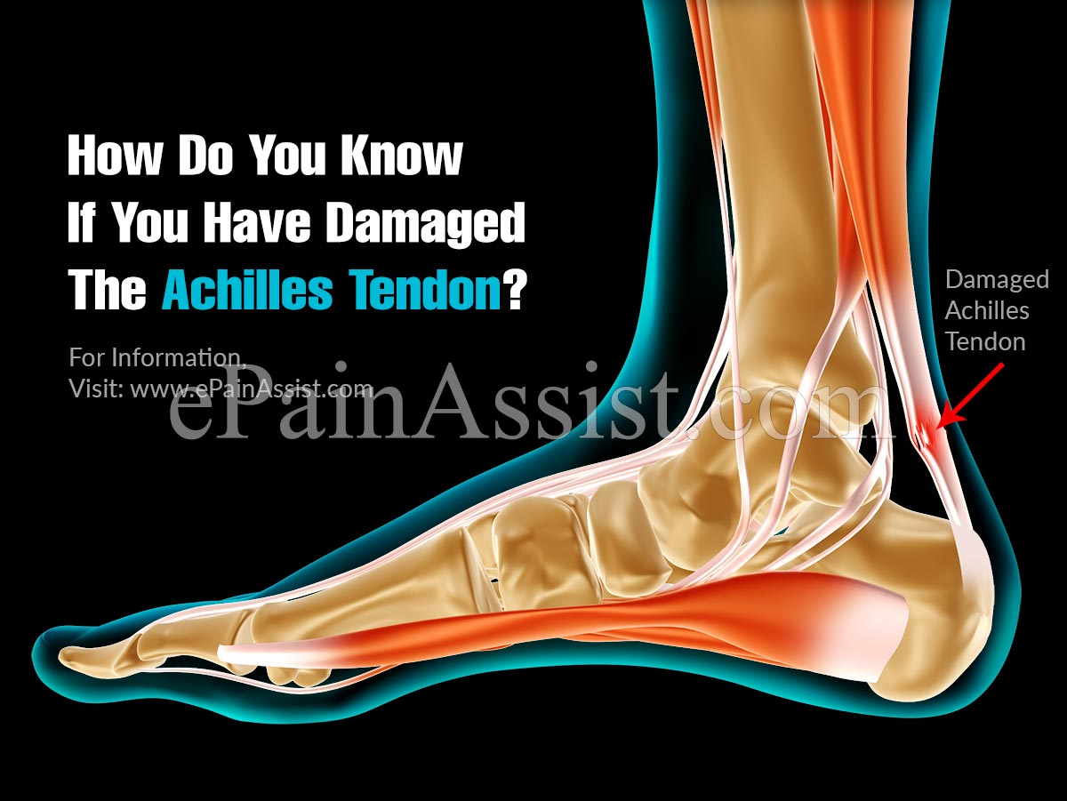 How Do You Know If You Have Damaged The Achilles Tendon?