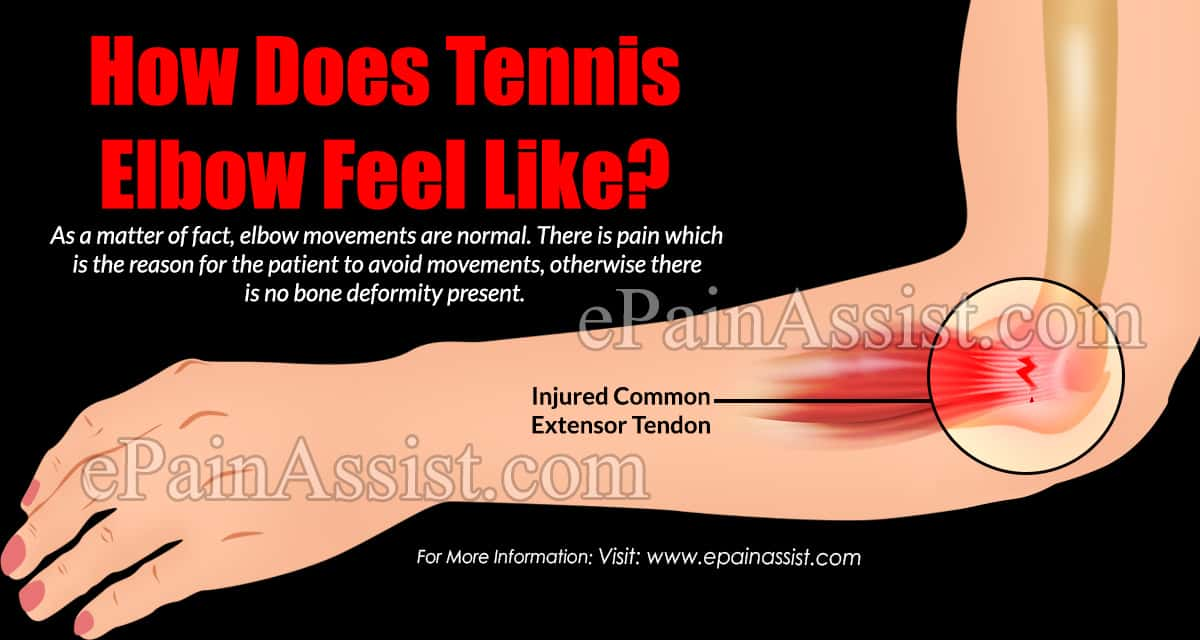How Does Tennis Elbow Feel Like?