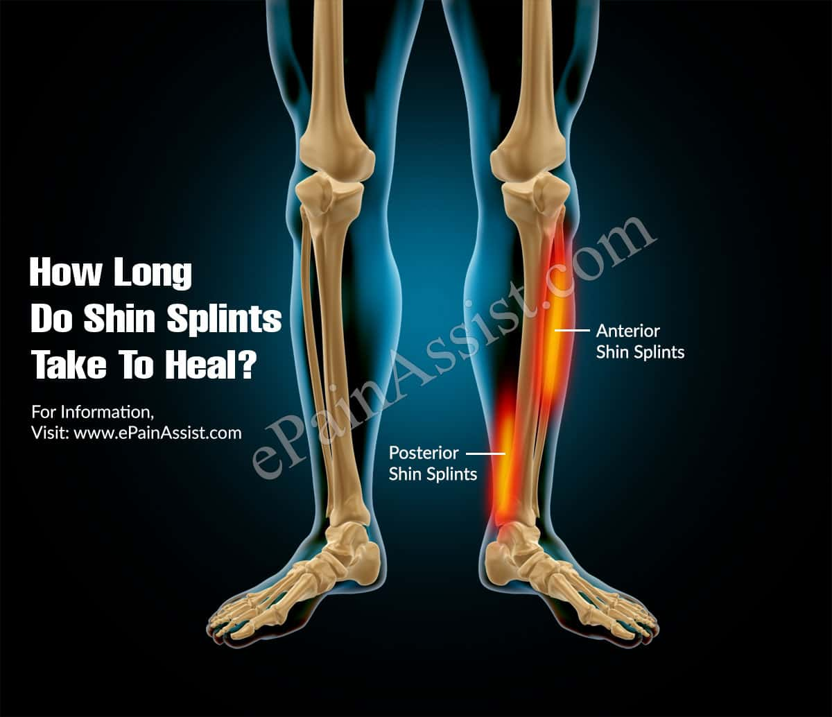 How Long Do Shin Splints Take To Heal?