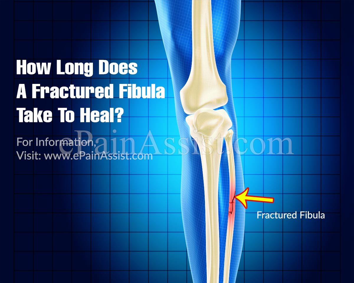 How Long Does A Fractured Fibula Take To Heal?