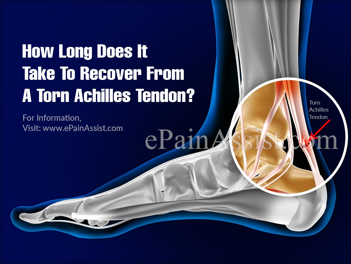How Long Does It Take To Recover From A Torn Achilles Tendon?