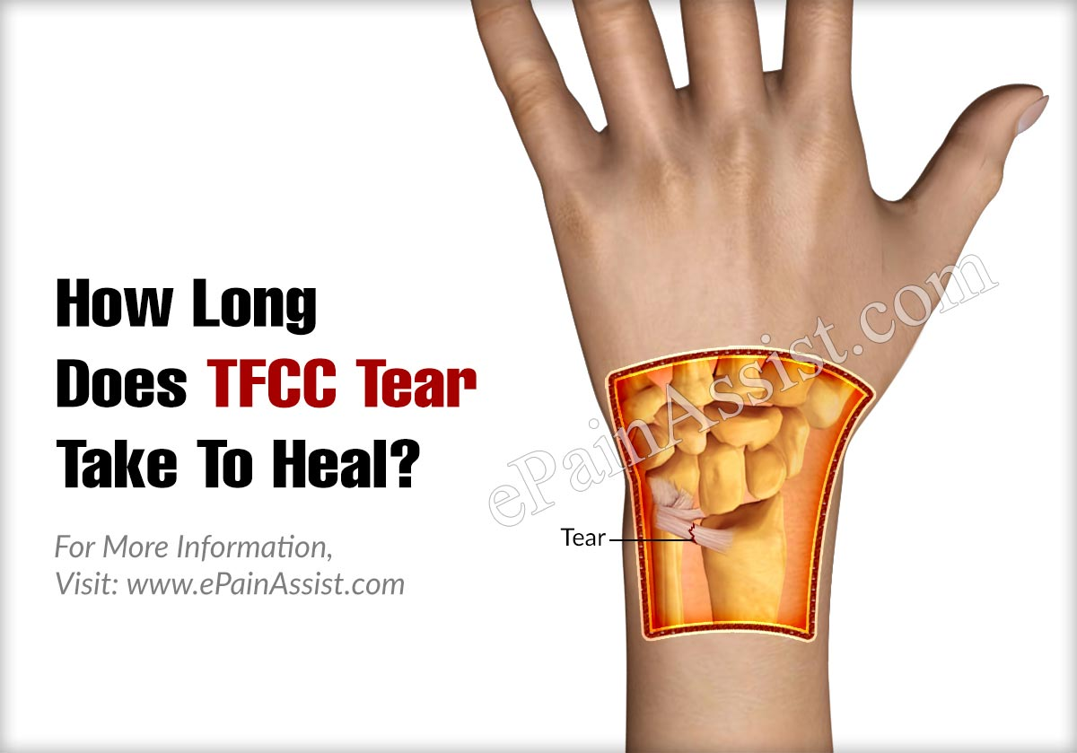 How Long Does TFCC Tear Take To Heal?