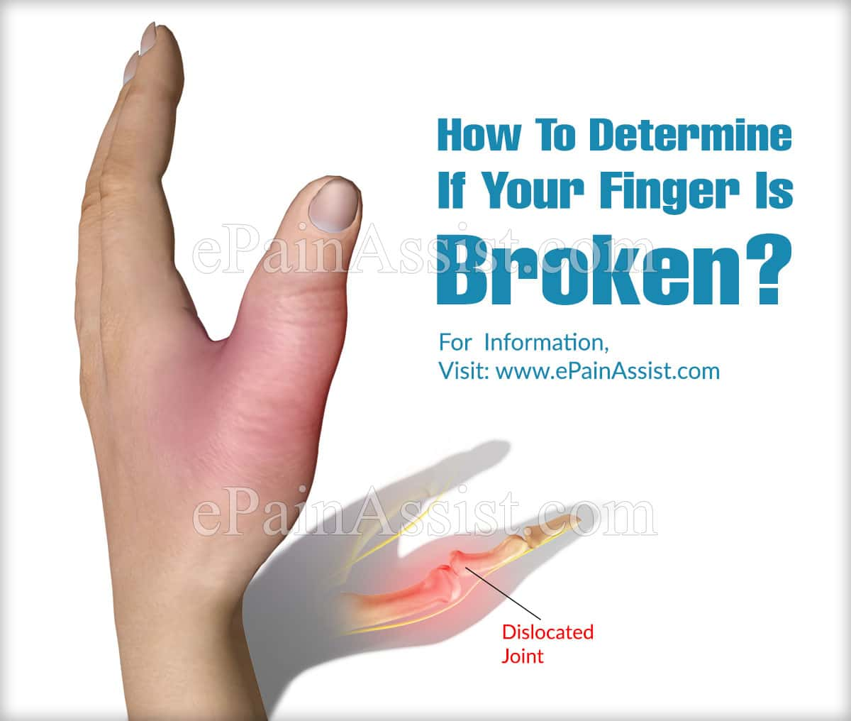 How To Determine If Your Finger Is Broken?