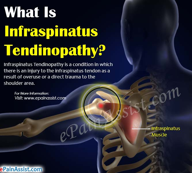What Is Infraspinatus Tendinopathy?