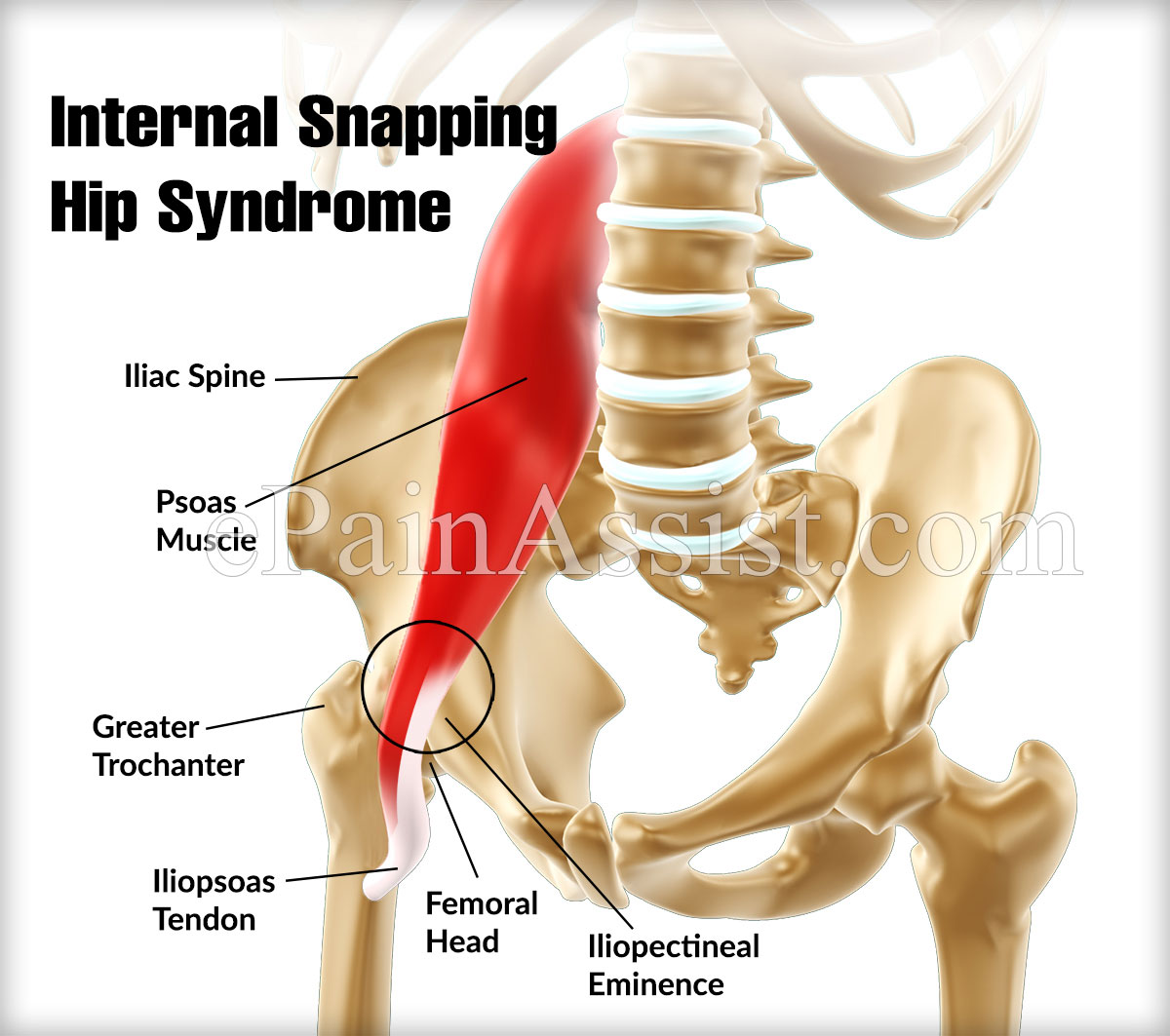 Internal Snapping