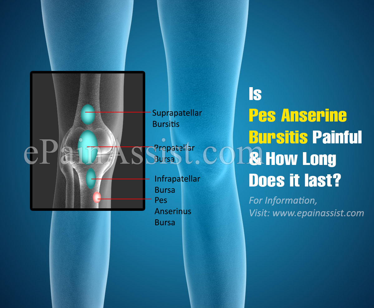 Is Pes Anserine Bursitis Painful & How Long Does it last?