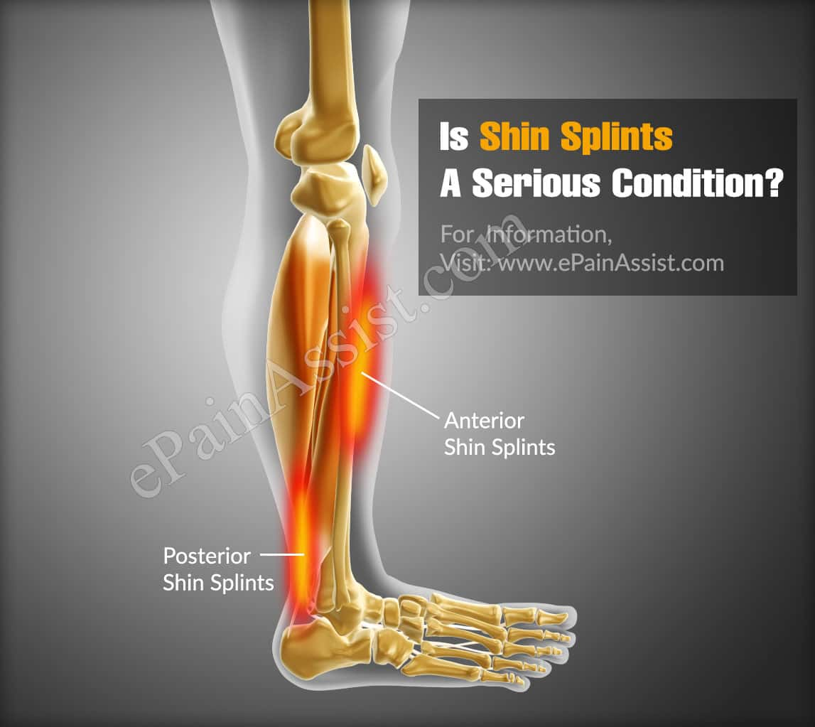 Is Shin Splints A Serious Condition?