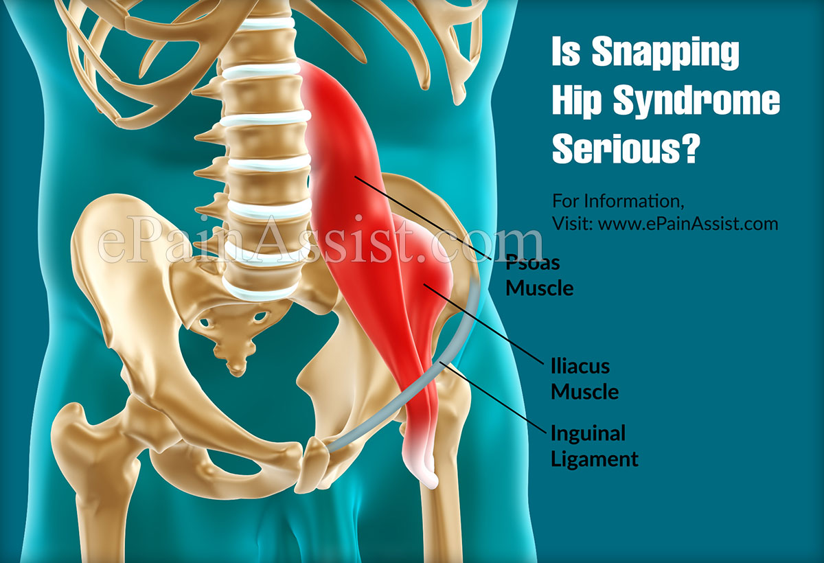 is snapping hip syndrome serious