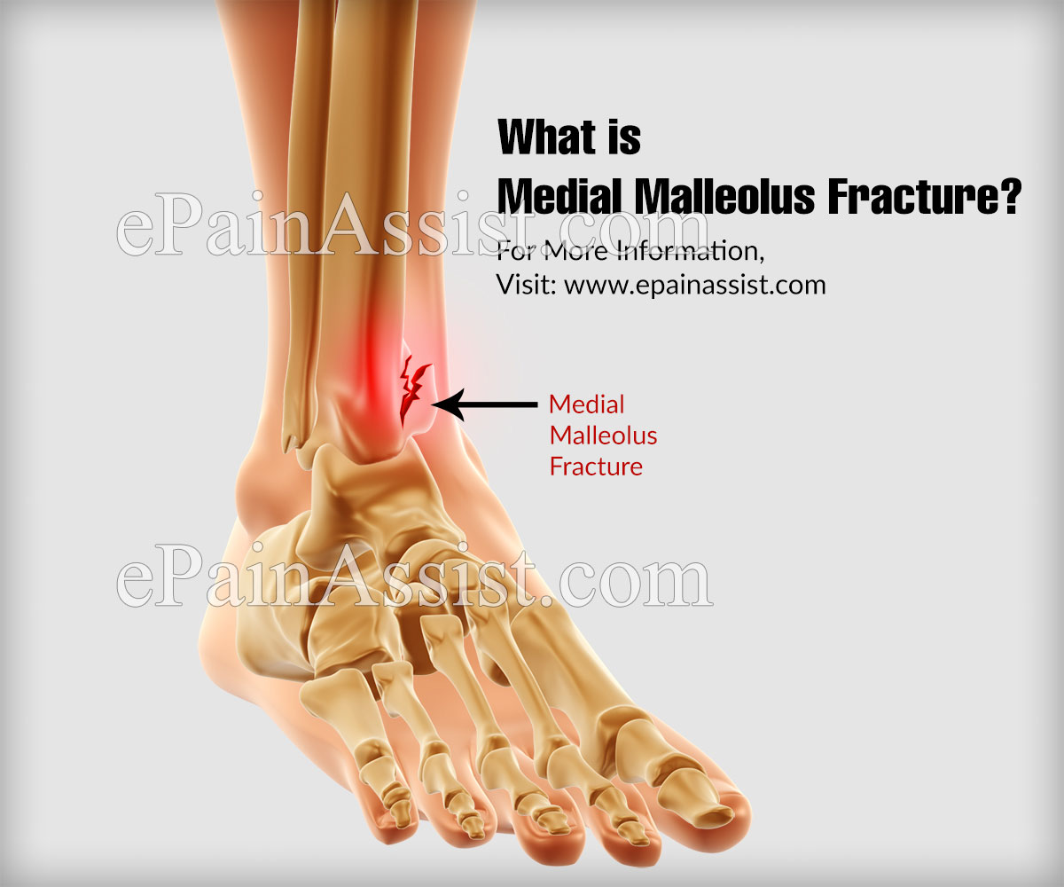 Medial Malleolus Fracture Causes Symptoms Treatment Recovery Time