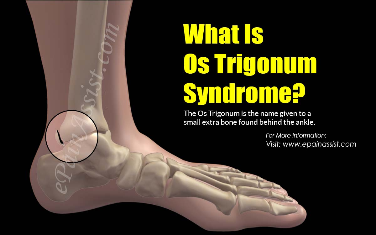 What Is Os Trigonum Syndrome?