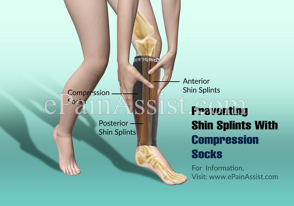 Preventing Shin Splints With Compression Socks