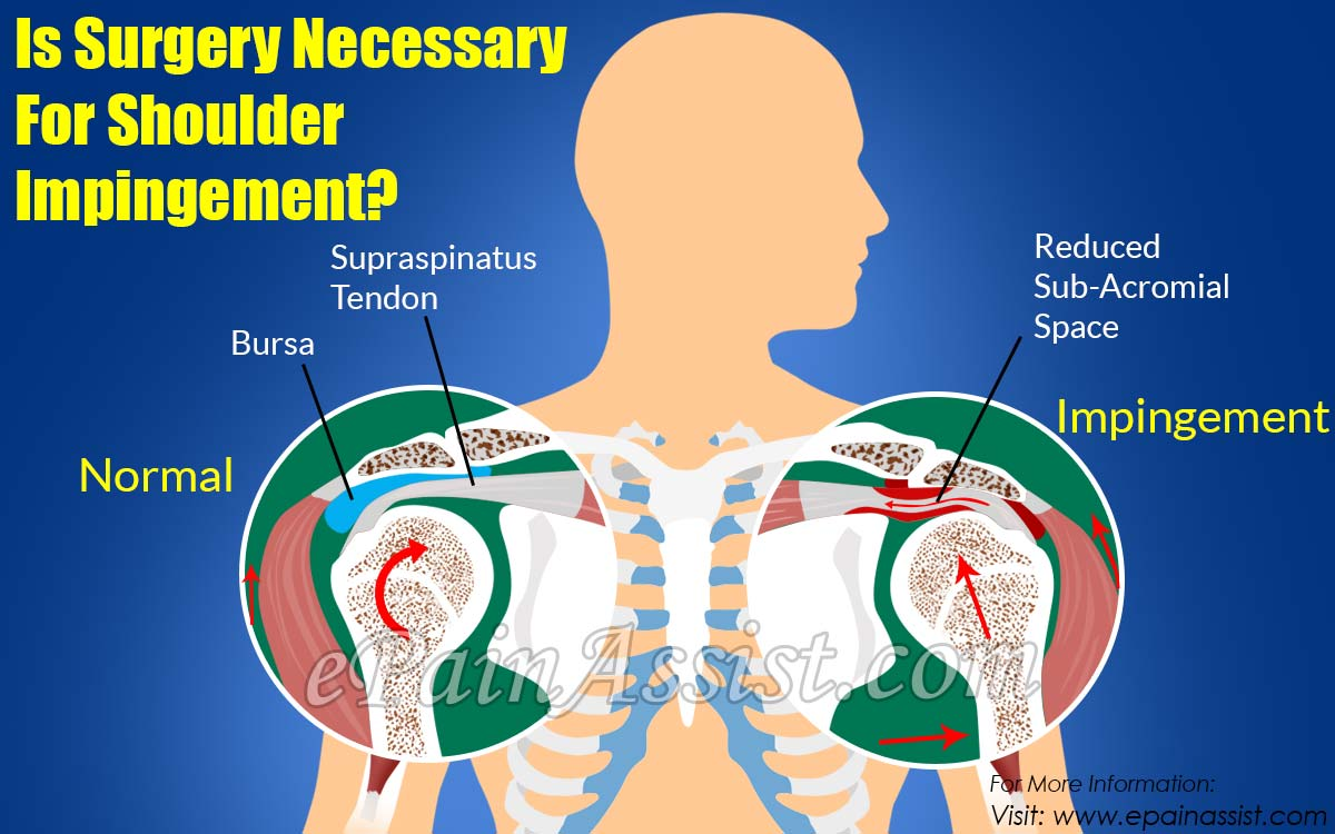Who Is At Risk For Shoulder Impingementis Surgery Necessary For