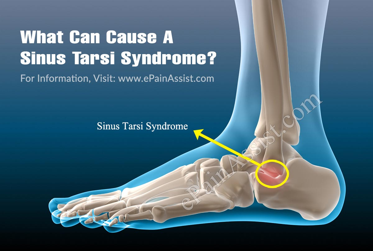What Can Cause A Sinus Tarsi Syndrome?