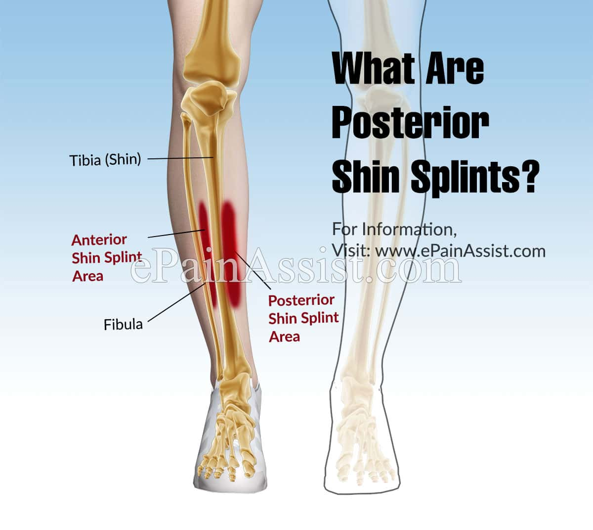 What Are Posterior Shin Splints?