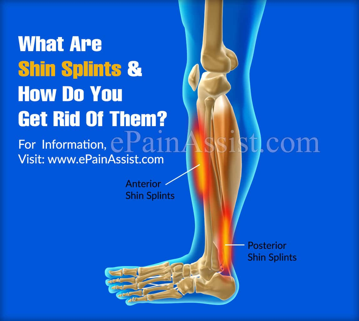 What Are Shin Splints And How Do You Get Rid Of Them?
