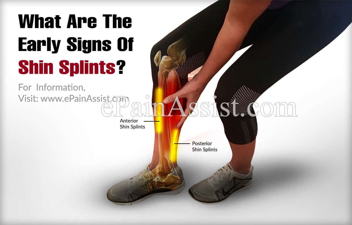 What Are The Early Signs Of Shin Splints?