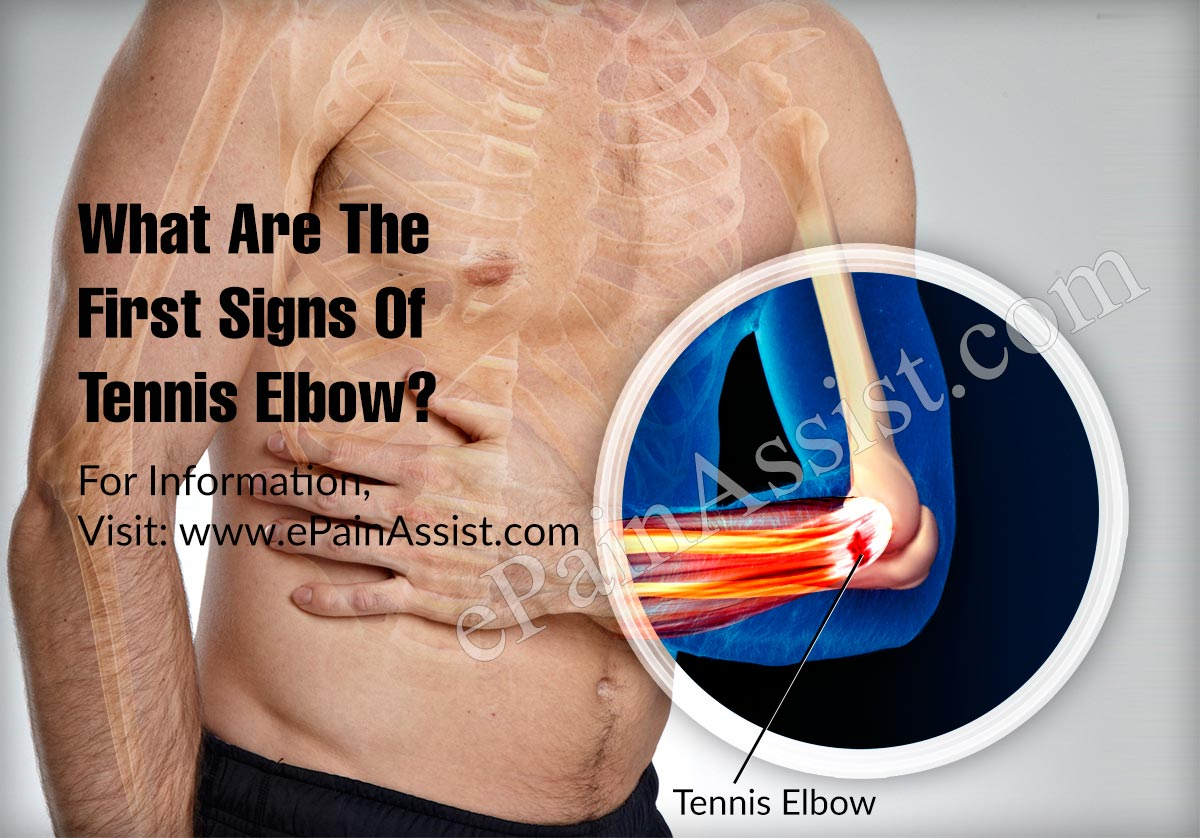 What Are The First Signs Of Tennis Elbow?