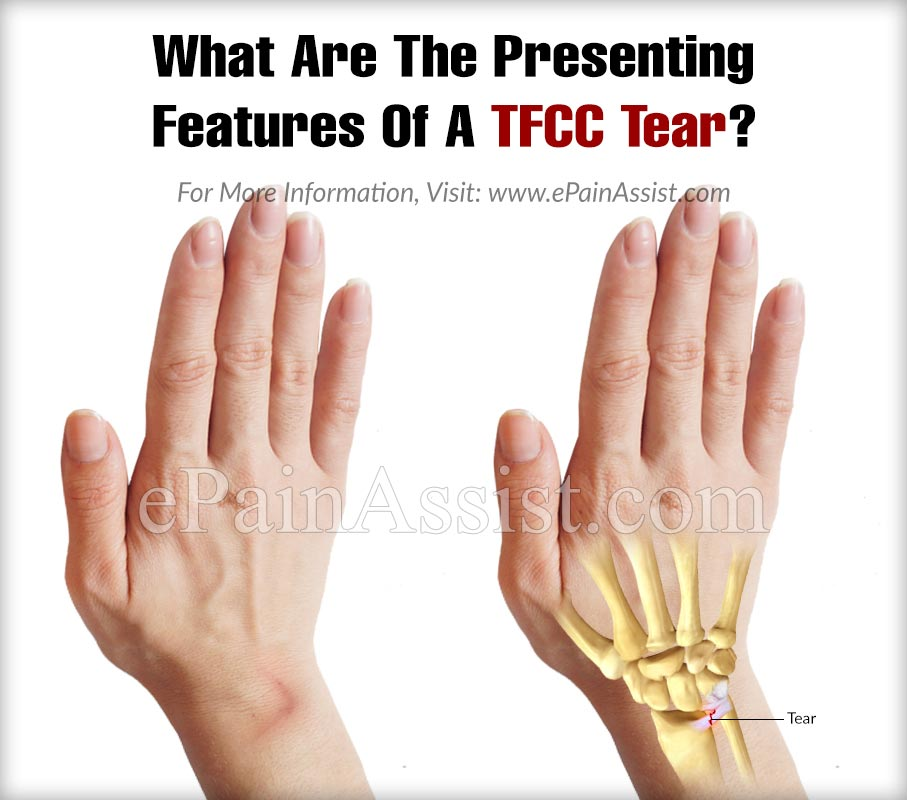 What Are The Presenting Features Of A TFCC Tear?