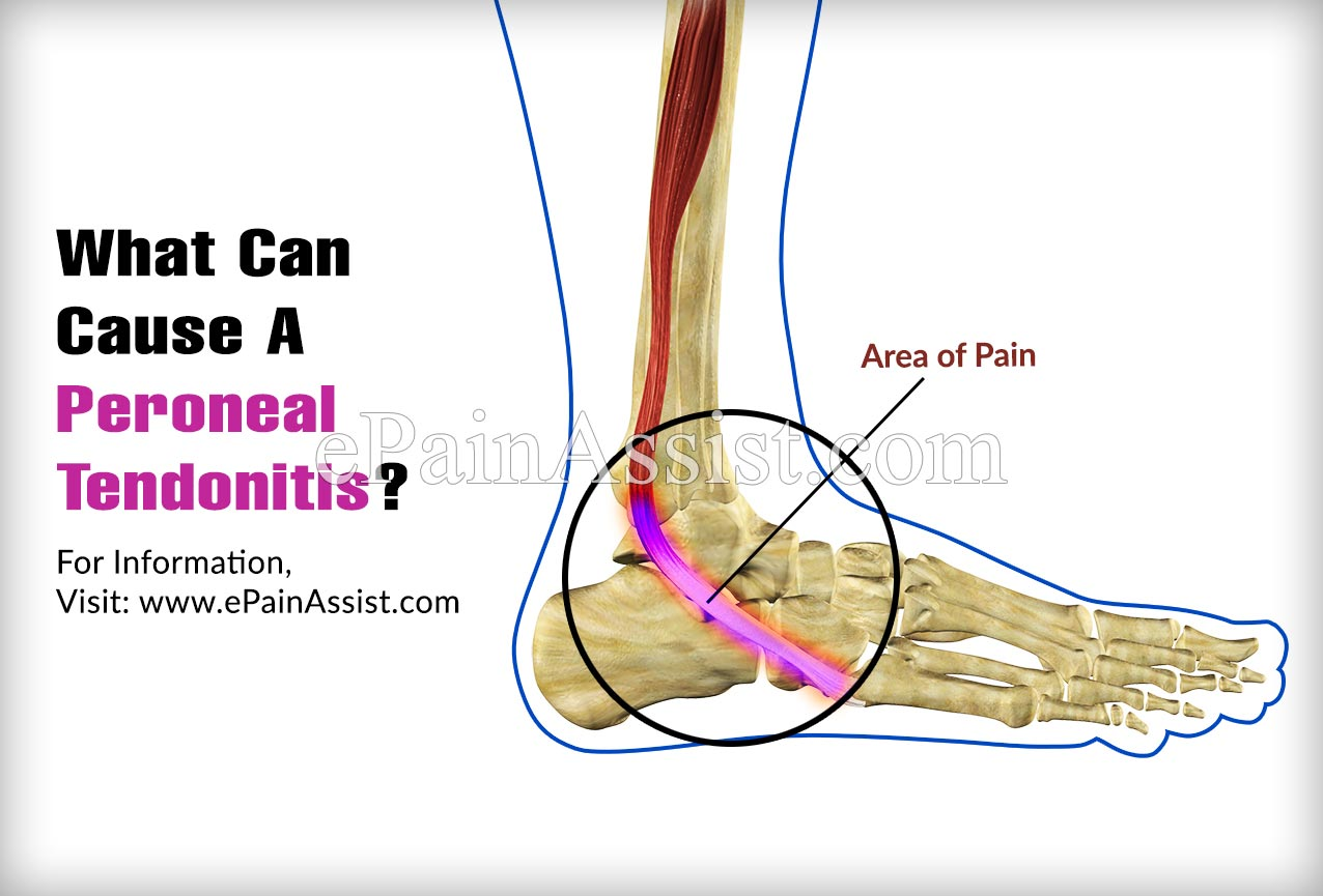 What Can Cause A Peroneal Tendonitis?