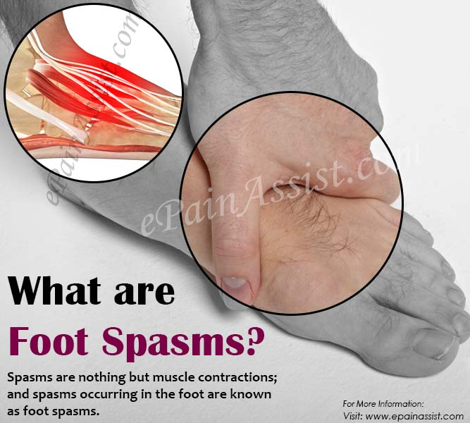 What are Foot Spasms?