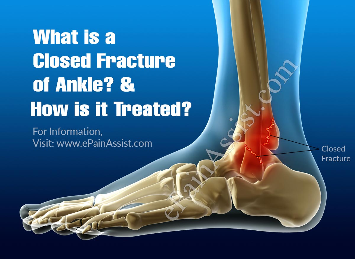 What is a Closed Fracture of Ankle & How is it Treated?