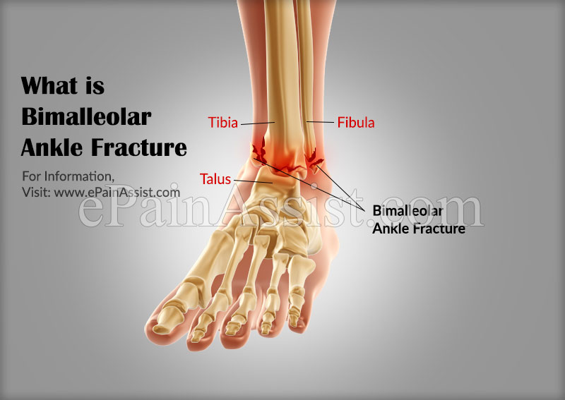 What Is Bimalleolar Ankle Fracture Causes Symptoms Treatment