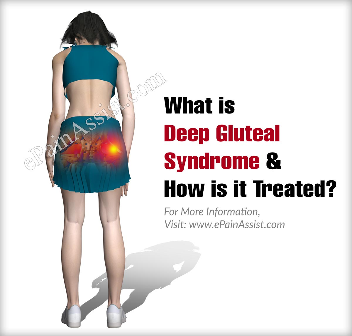What is Deep Gluteal Syndrome & How is it Treated?
