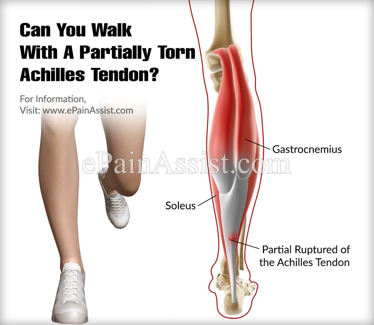 Can You Walk With A Partially Torn Achilles Tendon?