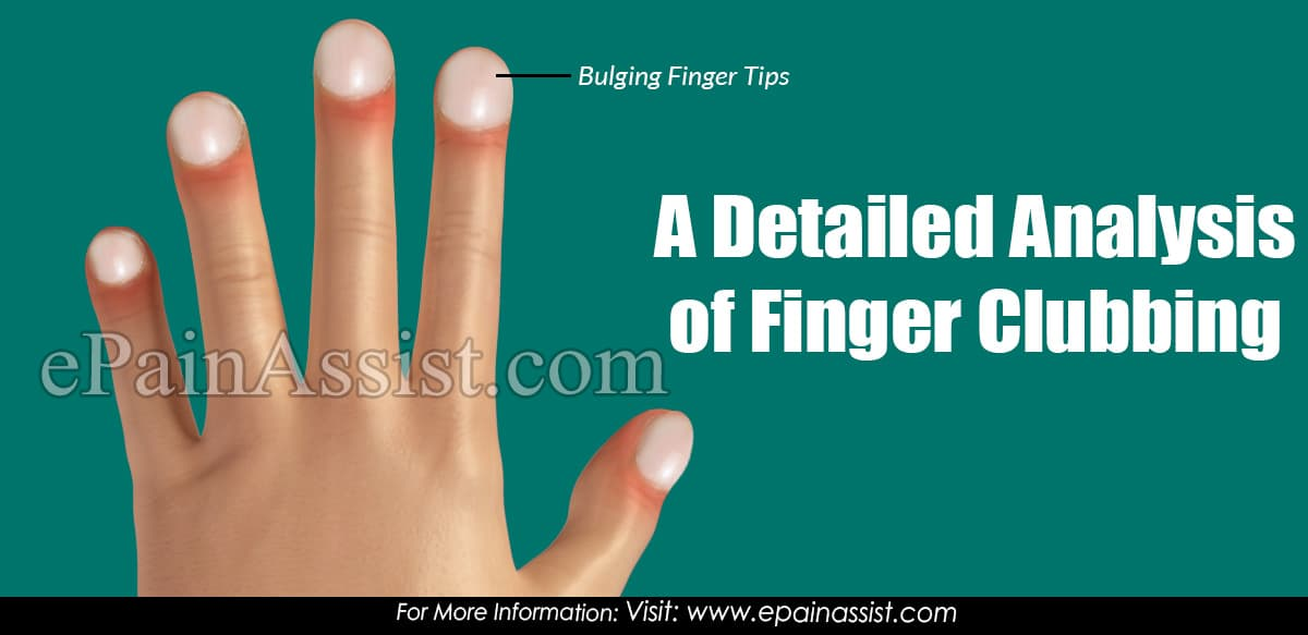 A Detailed Analysis of Finger Clubbing