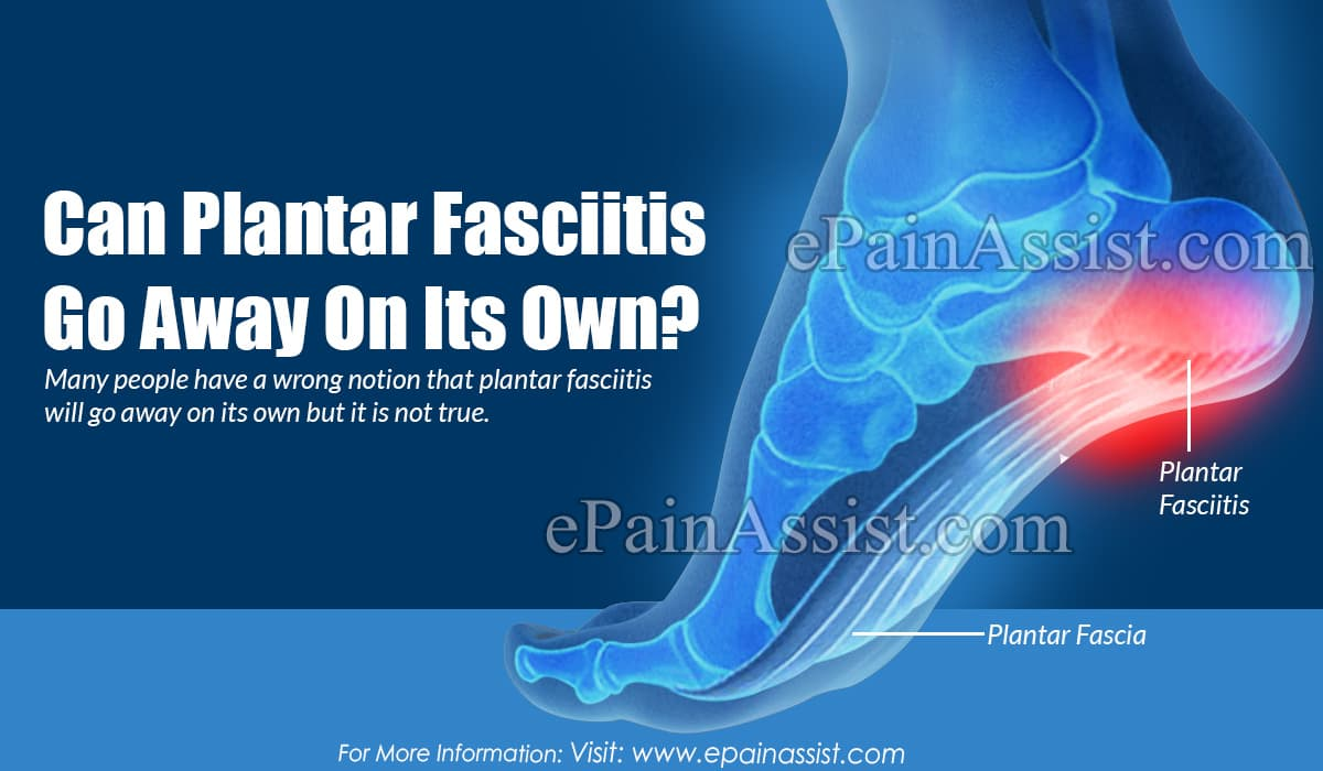 Can Plantar Fasciitis Go Away On Its Own?