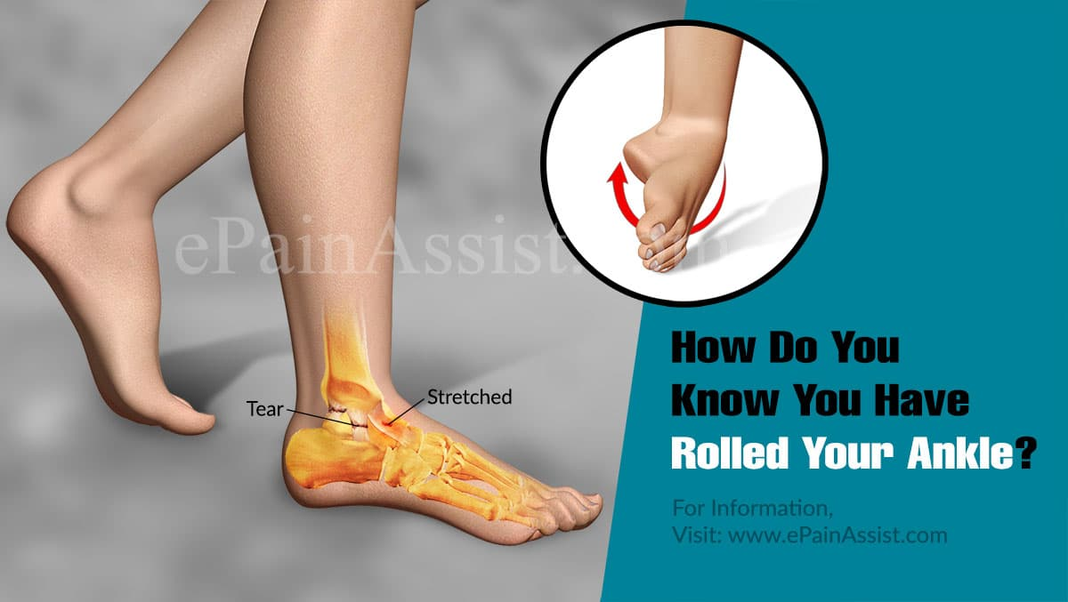 How Do You Know You Have Rolled Your Ankle?