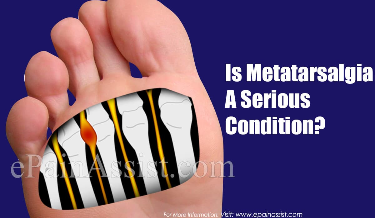 Is Metatarsalgia A Serious Condition?