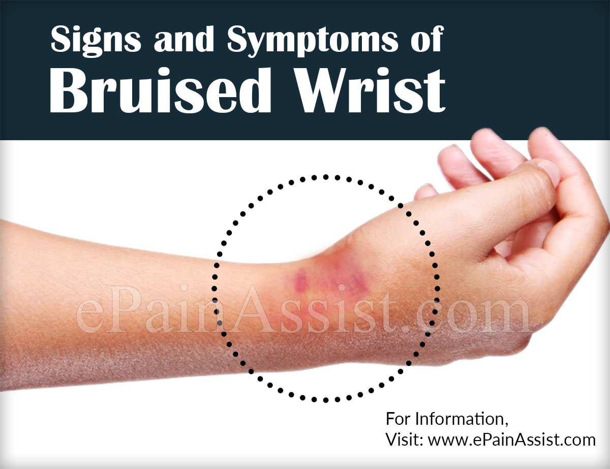 Bruised Wrist Wrist Contusion Causes Symptoms Treatment Test